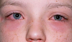 Symptom of Anaphylaxis - read, itchy eyes